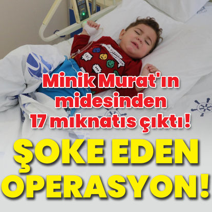 Minik Murat'ın midesinden 17 mıknatıs çıktı!
