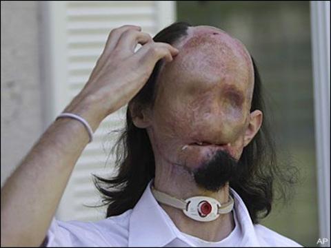 ABD'de yüz nakli yapılan adam
