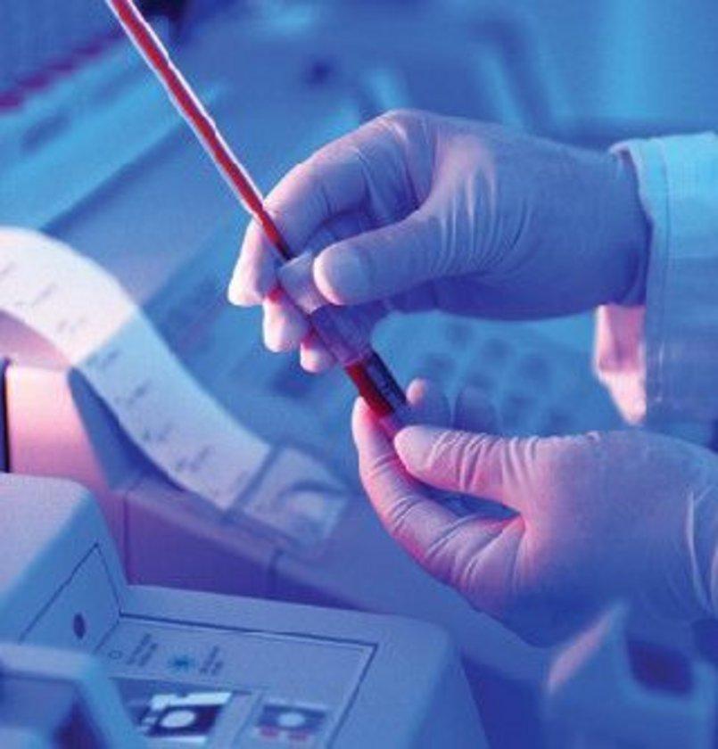 Bilim adamları, bu metabolitin kemik yoğunluğu, kolesterol seviyesi, tansiyon, akciğer fonksiyonu gibi anahtar konularda ipucu verdiğini ve