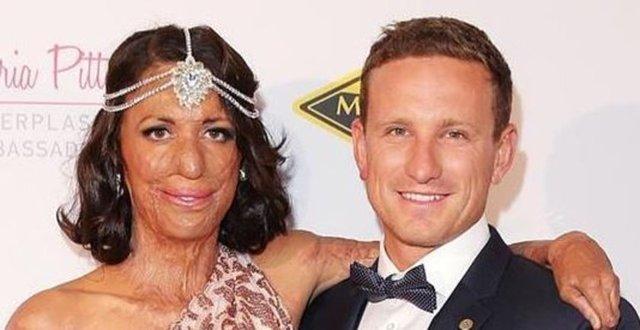 Kimberley Ultra Maratonu sırasında çıkan orman yangınında vücudunun yüzde 60'ından fazlası yanan atlet Turia Pitt ve beraber olduğu erkek arkadaşı Michael Hoskin nişanlandı.
