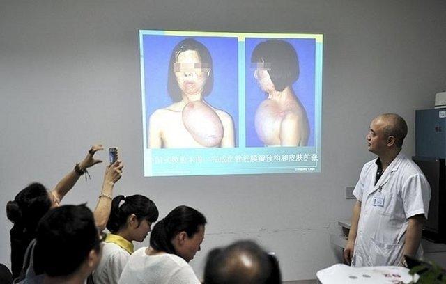 Фото китайских грудей 9 фотография