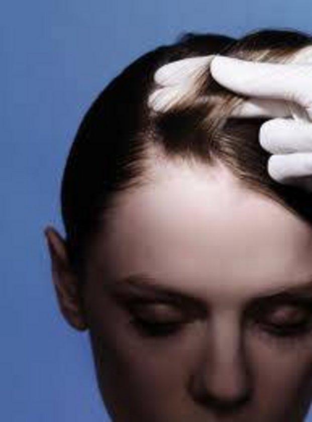 Defne sabunu saç diplerindeki gözenekleri açar ve saç dibi tahrişlerini onarırıcı etki gösterir.