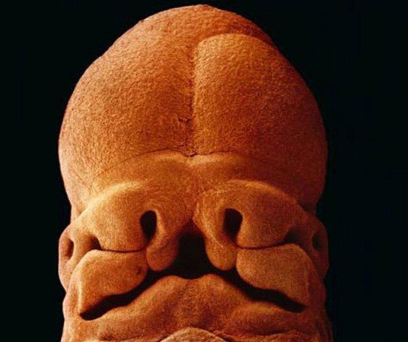 <p>5 hafta sonra. Yüz oluşmaya başlıyor. Burun delikleri, ağız ve göz boşlukları belli belirsiz görülebiliyor. Boyut 9 mm</p>