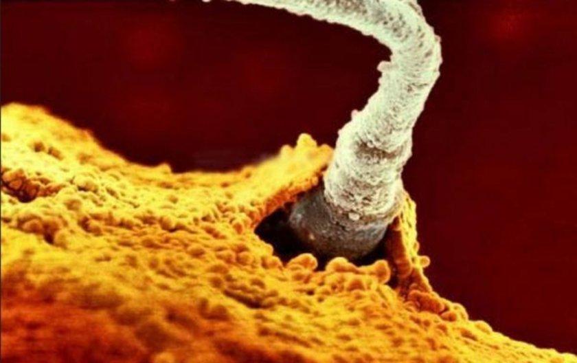 <p>Babanın 200 milyon sperminden 1 tanesi yumurtaya ulaşıyor</p>