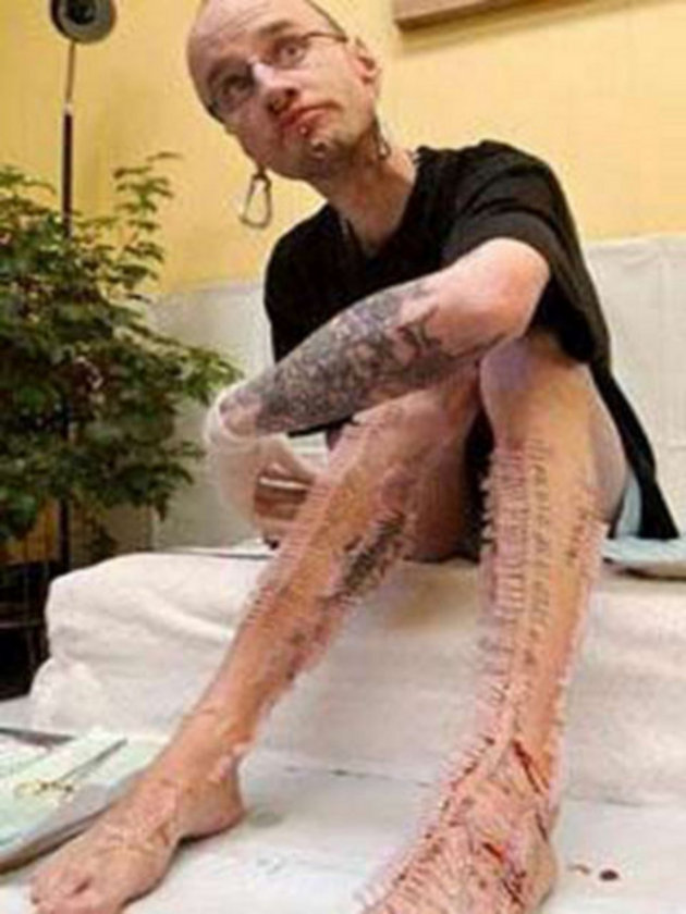 Kanadalı bu genç adam ise Guinness Rekorlar Kitabı'na girmek için hiç denenmemiş bir yöntem buldu. Bir buçuk saat içinde vücuduna 1.000 tane iğne batırarak kaktüs adam olma rekorunu kırdı.