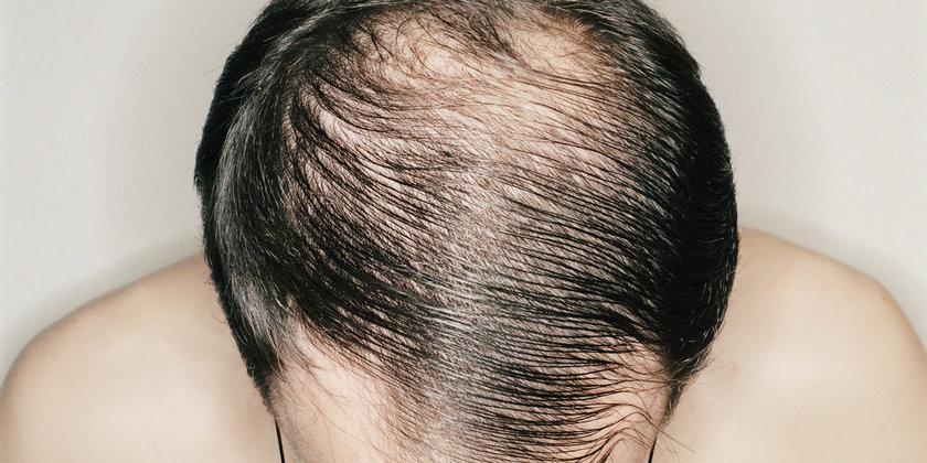 4-Protein eksikliği: Amerikan Dermatoloji Akademisi'ne göre, diyet sırasında yeteri kadar protein alınmadığında, vücut bu eksikliği gidermek için saç büyümesini durduruyor olabilir.