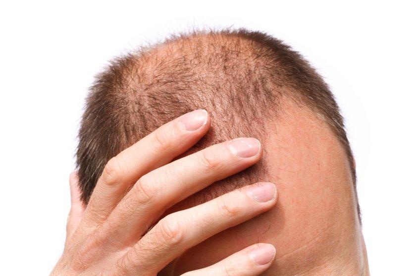 13-Lupus: Başka bir otoimmün hastalık olan Lupus da saç dökülmesine neden olabilir.