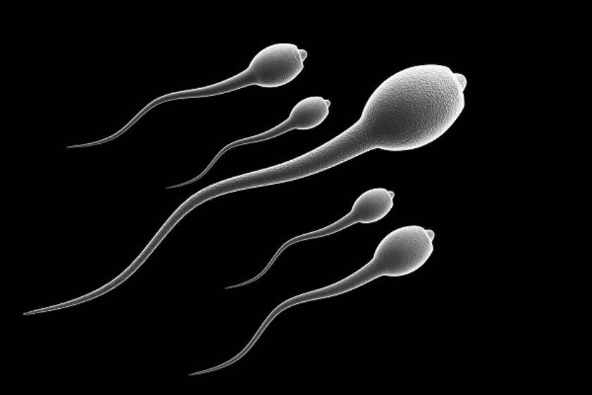 Semen analizi yaptırmak spermlerin hala sağlıklı olduğundan emin olmanın tek yoludur!
