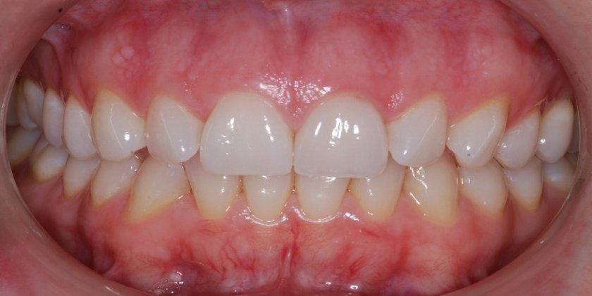 Eğer diş etlerin birden gözüne küçülmüş görünmeye başlarsa muhtemelen enflamasyon yaşıyorsun demektir.