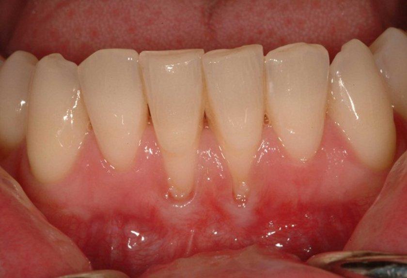 Sağlıklı diş etleri soluk pembedir ve dişlerin için minik kılıflar gibi durur.