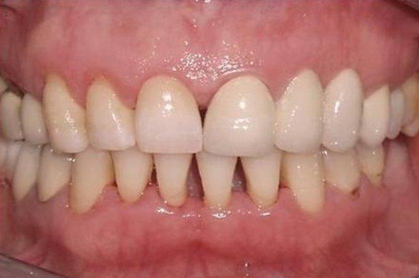 """Froum, """"Diş eti çekilmesi bunun en büyük sebebi. Çekilme, dişin hassas üst kısımlarını korunmasız bırakır"""" diyor."""