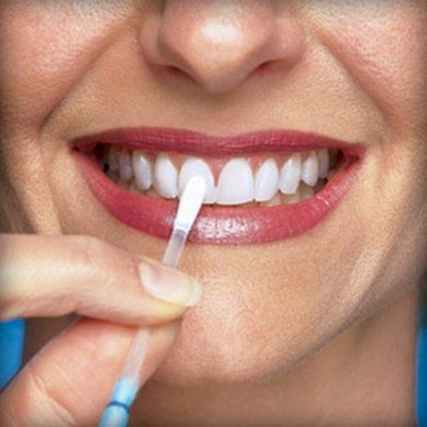 Benekli bir gülümseme, ağzında birçok mikrop olduğu anlamına gelir ve bunlar da diş eti rahatsızlıklarına yol açabilir.