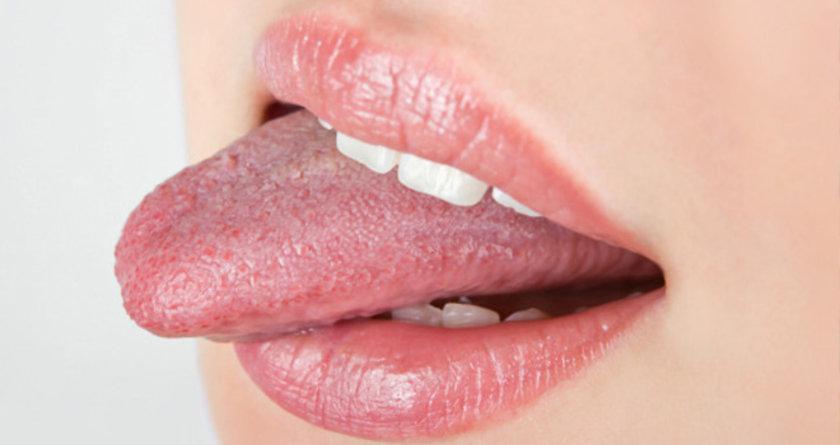 Bunun çözümü ise doğruca diş hekimine gidip teşhisin konulduktan sonra tedaviye başlamak.