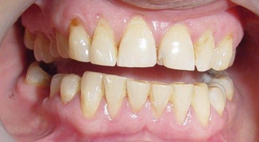 Sadece estetik açıdan kötü görünmekle kalmayan diş lekeleri, kendi başına zararlı olmasa da tipik şekilde plak oluşumuyla ortaya çıkıyor.