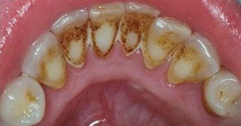 General Denstistry Academy Sözcüsü Diş Hekimi Carolyn Taggart-Burns, bu yapışkan bakteri tabakalarının son derece sağlıksız olduğunu belirtiyor.