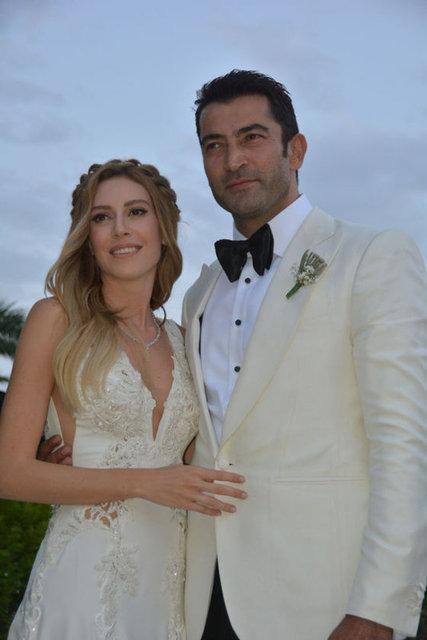 14 Mayıs'ta Kenan İmirzalıoğlu ile evlenen Sinem Kobal'ın alın ve göz çevresine botoks, elmacık kemikleri ile dudak çevresine de dolgu yaptırdığı iddia edildi.