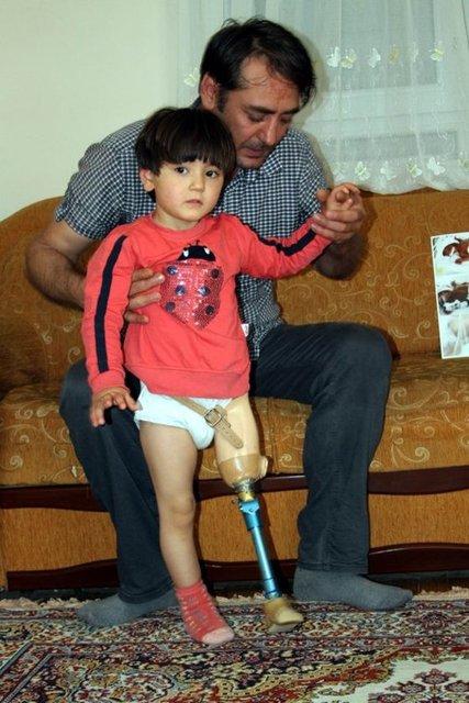 Antalya'da alüminyum doğrama ustası Ali İhsan Yıldırım, 6,5 aylık prematüre doğduktan sonra bacağı kesilen 3 yaşındaki kızına yürümeyi, 150 liraya kendi elleriyle yaptığı düzenekle öğretti.