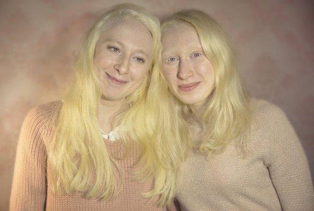 """Türkiye 'nin beyaz melekleri olarak nitelendirilebilecek """"Albinolar"""", kimi zaman hayallerinden feragat etmek zorunda kalsalar da yaşamlarını normal insanlar gibi sürdürmeye çalışıyor."""