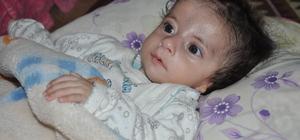 Kulak delikleri kapalı doğan bebeklerinin tedavisi için yardım bekliyorlar