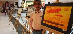 Kalp hastası Işık, ikinci kişisel resim sergisini açtı