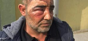 Şanlıurfalı sürücü Irak'ta yaralandı