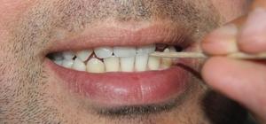 Diş doktorlarından 'kürdan' uyarısı