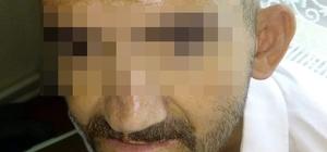 Engelli vatandaşın kafasında sigara söndüren şahsa ilginç ceza Suçunu duvara yazarak cezasını çekecek