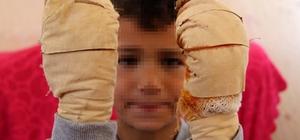 Komşu çocuğu, küçük Efe'ye dehşeti yaşattı 7 yaşındaki çocuğun ellerine kolonya döküp yaktı