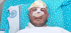 Motosiklet kaskı kırık diye takmayan sürücü dehşeti yaşadı Yerde sürüklenen sürücünün kafasına tam 30 dikiş atıldı