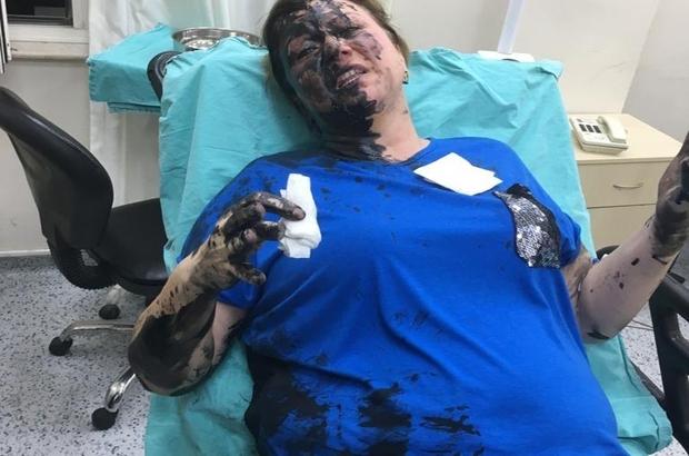 İş kadınını darp edip, yanıcı madde döken zanlı tutuklandı