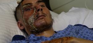 Bu halde hastaneden taburcu edildi, ailesi gözyaşına boğuldu Tanınmayacak hale gelen 22 yaşındaki gencin ailesi hastaneden şikayetçi olacak