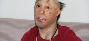 6 aylıkken yüzü yanmıştı, operasyonuna korona engel oldu Sesini duyuran Sanatçı Haluk Levent'e teşekkür mektubu yazdı Yüzde 97 oranında engeli bulunan Durak, salgın sonrasında ameliyat olacak
