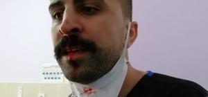 Ağrı'da sosyal mesafe uyarısı yapan hemşirenin burnunu kırdılar