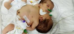 Afrinli yapışık ikizler Hatay'a getirildi 4 kilo 200 gramlık yapışık ikiz bebekler, MKÜ Araştırma ve Uygulama Hastanesinde tedavi altına alındı Dr. Esra Yazarlı, gövdelerinden birbirine yapışık ikizlerin dolaşımını tek bir kalbin sağladığını söyledi