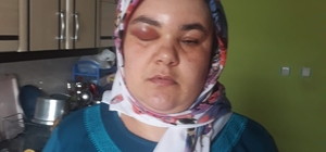 """Miras yüzünden darp edilen kadın: """"Babam gibi öldürülmek istemiyorum"""" Adana'da miras yüzünden kendisini darp eden ağabeyinin serbest bırakılmasına tepki gösterdi"""