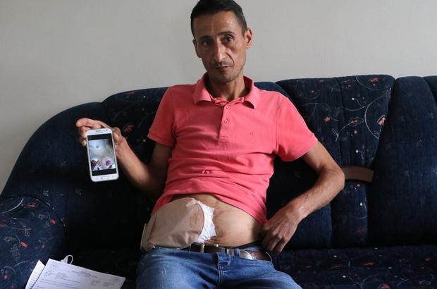 """Bağırsakları vücudunun dışında olan adam yardım bekliyor Crohn hastası Hasan Mapçı: """"Ömür boyu bu şekilde yaşamak istemiyorum"""""""