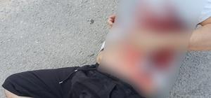 Çocukların kavgasına aileler karıştı: 1 yaralı